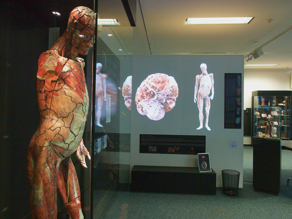 museum of medicine brussels, best museums in brussels